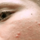white-spots-on-face-picture-2