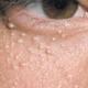 white-spots-under-eyes-2