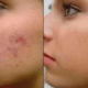 before-and-after-hydrogen-peroxide-for-pimple-marks-2