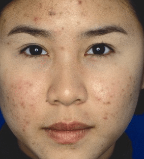 how to remove pimple marks and scars from face fast