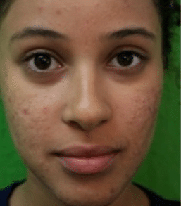 how to remove pimple marks on face fast