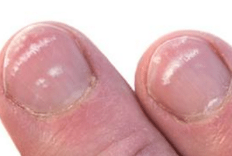 white-spots-on-nails-1-2