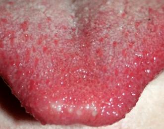white-spots-on-tongue-2