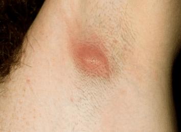 ingrown-hair-armpit-2
