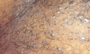 ingrown-pubic-hair-2