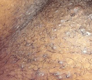 ingrown-pubic-hair-2