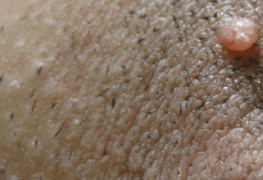 ingrown-pubic-hair-cyst-2
