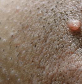 ingrown-pubic-hair-cyst-2