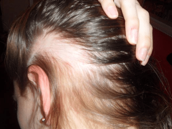 causes of hair loss in female