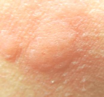 mosquito bites swelling