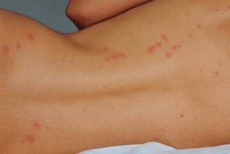 bed bug rash pictures