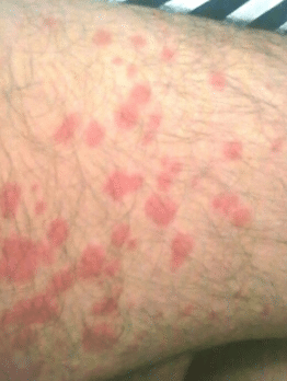 dust mite rash