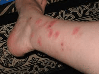 flea bites on humans symptoms