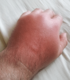 horse fly bite swelling