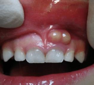 white lump on gums