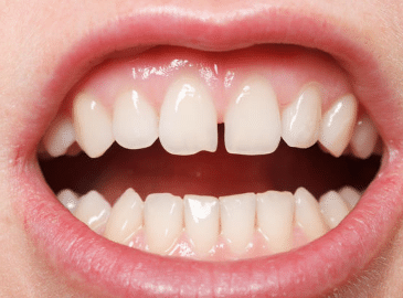white-dots-on-gums-2
