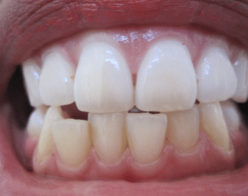 white patches on gums