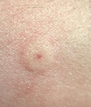 yellow jacket bite sting