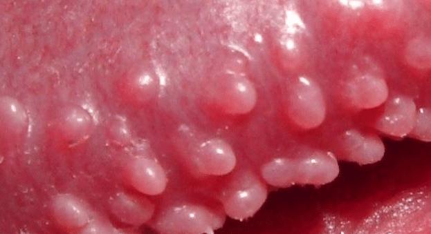 bumps on penile head