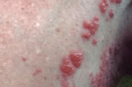 penile-bumps-causes-1