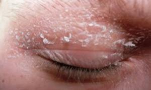 Dry-skin-under-eyes-1