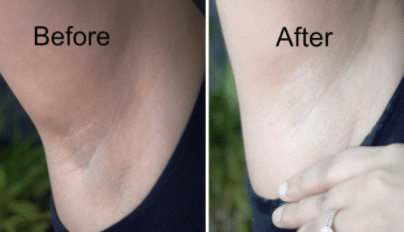 how to lighten dark armpits