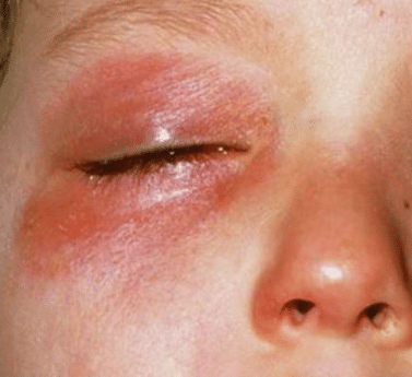 treatment of red itchy skin