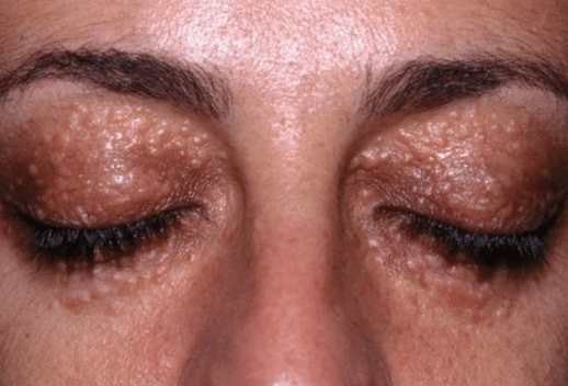 symptoms of dry skin under eyes