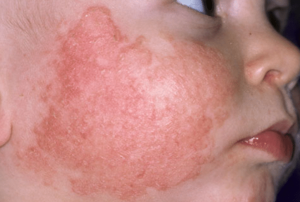 Baby dry skin on face