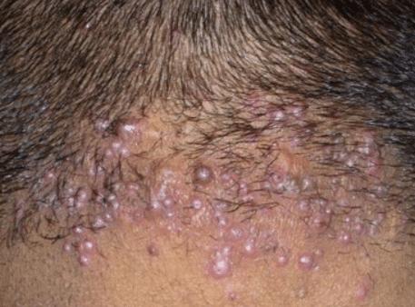 Haircut pimples