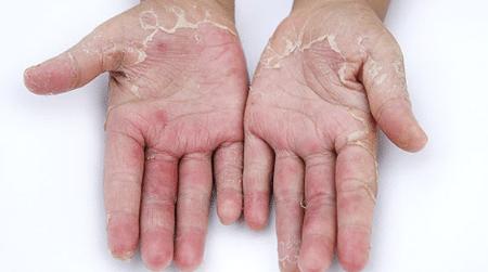 causes-of-peeling-hands-1