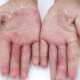 causes-of-peeling-hands-1