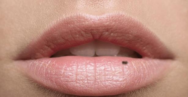 dark dots on the lips