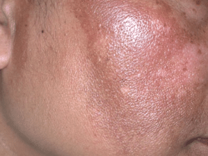 dry skin patches on face picture