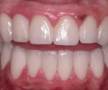 dark spots on gums