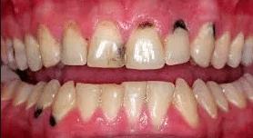 dark-spots-on-gums-2