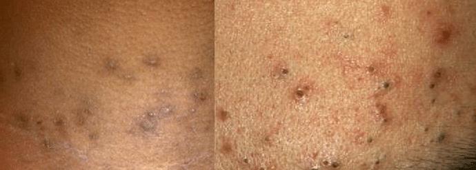 dark spots on legs