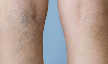 dark-spots-on-legs-2
