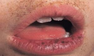 dark-spots-on-the-lips-1