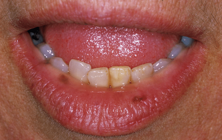 dark spots on the lips and gums