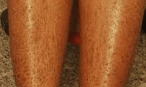 dry-skin-on-legs-1-300x236-1
