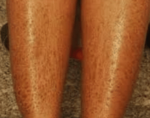 dry skin on legs picture