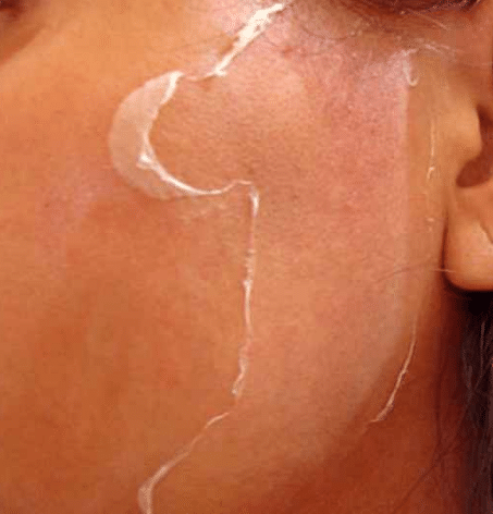 flaking skin on face