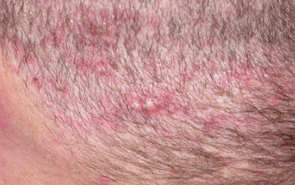 painful bumps on scalp