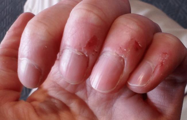 peeling around the nails