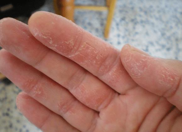 peeling fingers