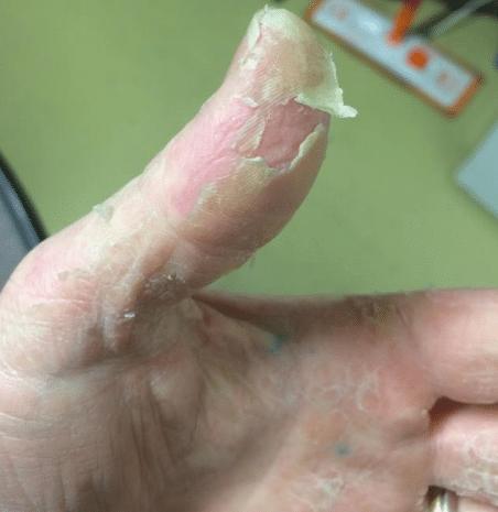 peeling fingertip