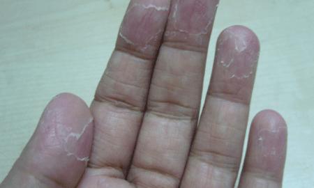 peeling-fingertips-1