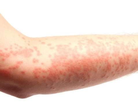 red-bumps-on-arm-1