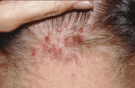 red-spots-causes-1